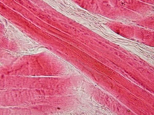 Poprečno-prugati mišić (Foto: commons.wikimedia)